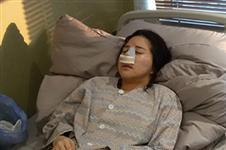 韩国GNG医院揭秘鼻尖抬高术恢复过程图及案例效果