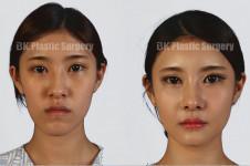 长脸变短有自然方法吗?韩国下巴缩短手术图解分享!