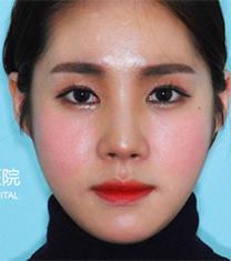 韩国齐娥牙科轮廓手术缩颧骨前后对比案例_术后