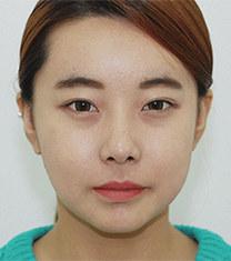 韩国齐娥牙科姜永浩正颌手术前后对比图_术后
