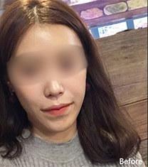 韩国齐娥牙科官网双鄂手术整形案例_术前