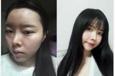 韩国仿生隆鼻可以永久吗,有没有后遗症?