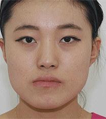 韩国齐娥牙科姜永浩正颌手术前后对比图_术前