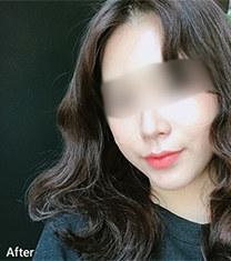 韩国齐娥牙科官网双鄂手术整形案例
