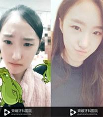 韩国齐娥牙科面部整形案例前后图片