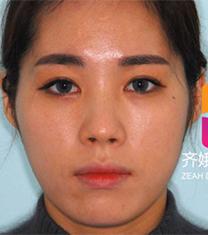 韩国齐娥牙科轮廓手术缩颧骨前后对比案例_术前