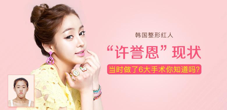 """深扒:韩国整形红人""""许誉恩""""现状,她当时做了6大手术你知道吗?"""