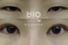 揭秘:韩国BIO医院洪星杓双眼皮修复手术真实案例