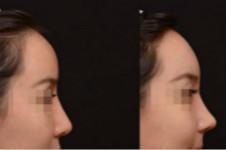 韩国3D仿生隆鼻有没有真人案例?