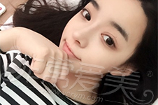 韩国原辰与朱诺做鼻子前后照片分析,极具韩范的经典案例