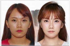齐娥牙科做颧骨如何,在韩国排名能否进前十?