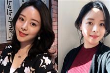 韩国ID医院修复隆鼻失败手术真人案例分享