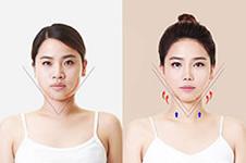 韩国ID医院下颌角整形成功案例大集合