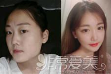 曝光:韩国一路美脸型整形特色+真人案例分析!