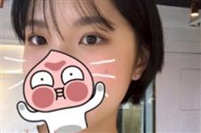 韩国mind整形医院双眼皮手术日记分享