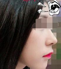 韩国nplus整形尹贤哲做鼻子案例图