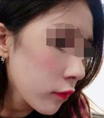韩国nplus整形医院做鼻子真实案例