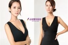 胸部下垂怎么办?韩国必妩产后乳房修复真人案例为你解答