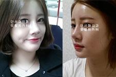 韩国做鼻子好医生收录(十):nplus尹贤哲与AHN安晟凤鼻修复