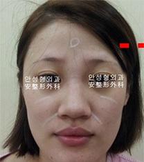 韩国AHN医院安晟凤隆鼻前后对比图