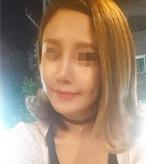 韩国AHN整形安晟凤做鼻子案例图