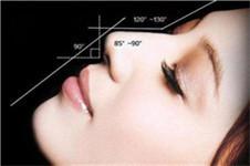 蒜头鼻整形对比照片,这么整形能变精致高鼻梁