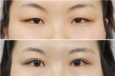 做韩式双眼皮医院,韩国有哪些比较出色?