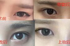你知道韩国eve修眼角价格多少钱吗?内外眼睛案例图分享!