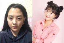 韩国凯伦秀和g家做轮廓怎么样,该怎样进行选择?