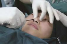 隆鼻假体取出后恢复会怎么样?松弛和炎症会不会有?
