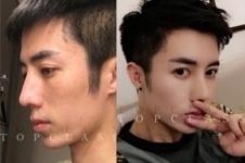 topclass在韩国做鼻子华丽风,案例+日记看个痛快!