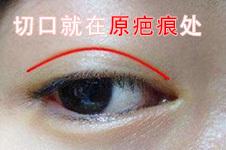 双眼皮疤痕修复怎么才彻底,疤痕贴、激光效果都不一定好