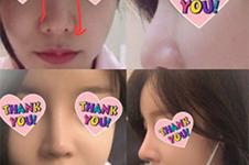 韩国擅长歪鼻子矫正的motive与博朗温手术前后照片集合贴!
