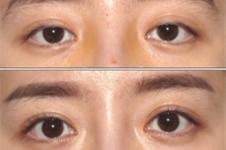 韩国延世enb医院如何,金民秀做眼修复案例效果怎么样?