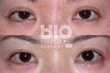 做双眼皮手术成内双了可以修复吗,多久后可以二次手术?