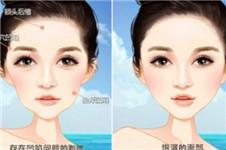 韩国ing整形眼鼻+脂肪填充30天恢复日记案例