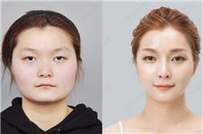 topclass医院鼻整形和431整形ID相比,各有哪些不同?