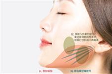 韩国高恩世上整形医院面部轮廓整形在首尔江南区口碑如何