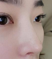韩国纯真整形眼鼻综合整形前后对比案例