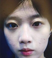 韩国纯真整形医院华丽风隆鼻+双眼皮案例照