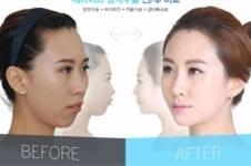 改善下巴后缩自然方法可靠吗?牙套VS整形该怎么选?