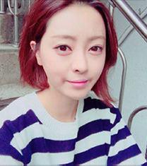 韩国cbk兔唇唇腭裂修复案例前后照片_术后
