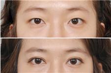 韩国ID整形外科医开眼角手术安全性和效果怎么样