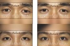 自体填充眼窝凹陷手术怎么做,一般需要多少钱?