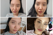 韩国cbk整形如何防止轮廓颧骨下垂?这些秘密首次曝光!