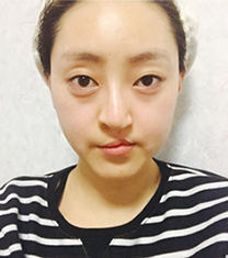 韩国cbk兔唇唇腭裂修复案例前后照片_术前