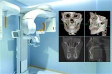 德莱茵整形医院做隆鼻失败修复方法、特色大分析!