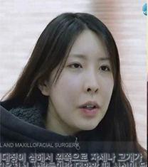 韩国now美双鄂手术50天前后对比照片