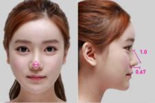 韩式鼻尖整形效果好吗,有没有案例对比图?
