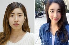 韩国做颧弓下颌角手术价格贵不贵,哪家医院效果好?